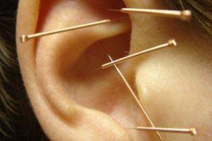 akupunktura 1